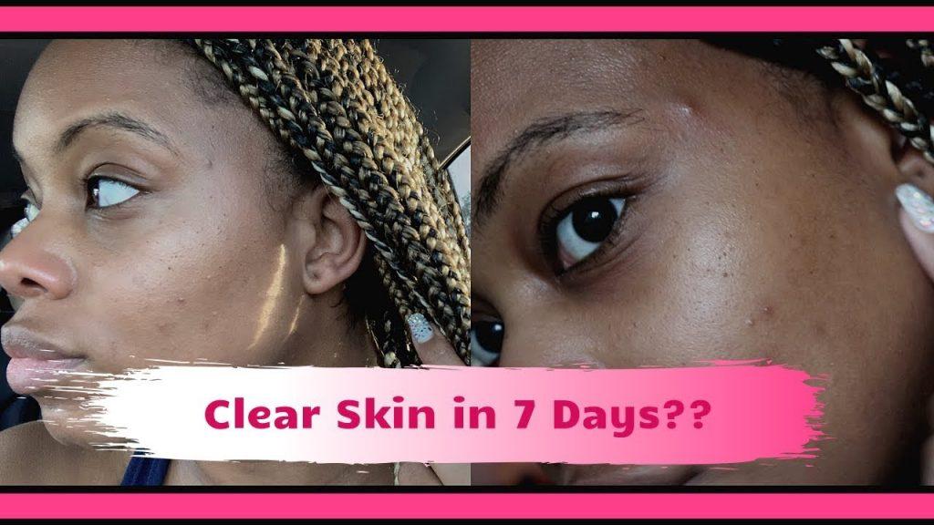 remove-dark-spots